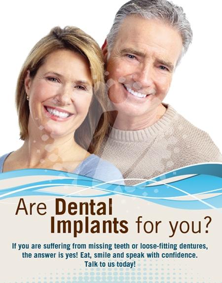 Implant Dental Posters   Dental Office Marketing Agency ...