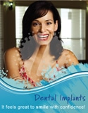 Dental Poster 4001 | Implants Dental Posters | Identity Namebrands Inc