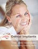Dental Poster 4002 | Dental Implants | Identity Namebrands Inc