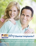 Dental Poster 4006 | Dental Implants | Identity Namebrands Inc