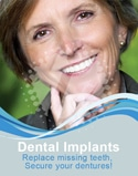 Dental Poster 4013 | Dental Implants | Identity Namebrands Inc