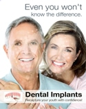 Dental Poster 4014 | Dental Implants | Identity Namebrands Inc